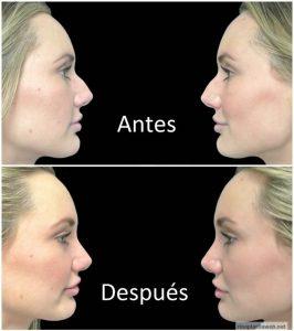 operación de nariz también llamada rinoplastia