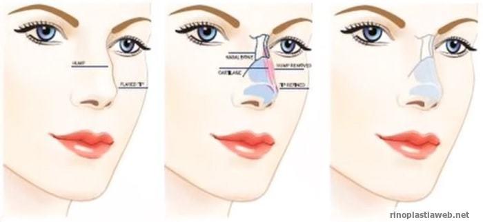 proceso de operacion de la rinoplastia