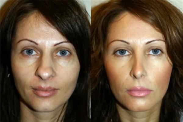 mejorar-el-aspecto-de-la-nariz