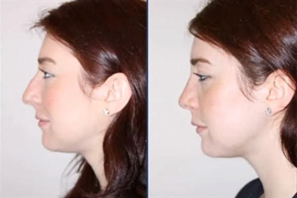 cirugia-rinoplastia