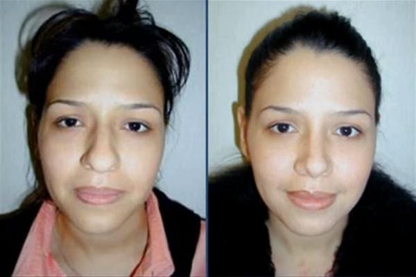 cirugia-de-nariz-antes-y-despues