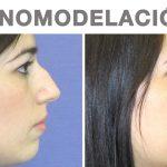 Corregir nariz aguileña sin cirugía