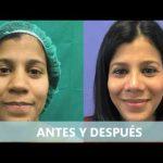 Rinoplastia nariz ancha antes y después